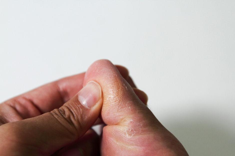 발뒤꿈치 통증 (9)